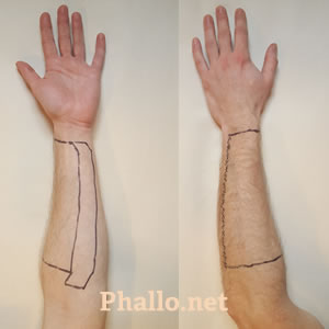Patients Guide To Pre Operative Hair Removal For Phalloplasty