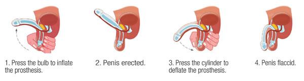 female to male penile implant